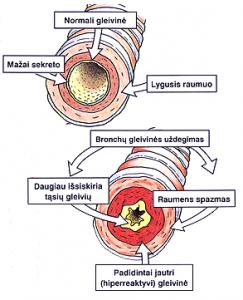astma1