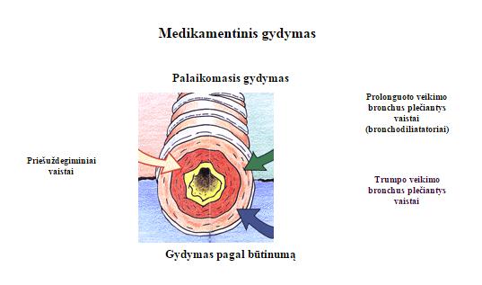 astma4